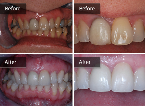 Porcelain Veneers Gallery Edinburgh | Cosmetic Dentist | Bruntsfield