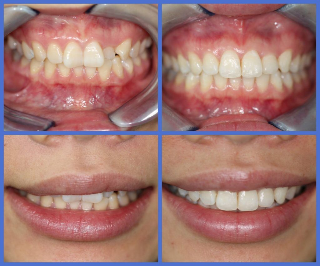 Teeth Straightening Whitening Amp Bonding Bruntsfield Dental